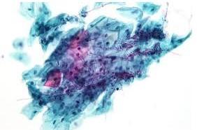 Все о грибках Candida. Ложная информация о симптомах вымирания и реакциях Герксхаймера