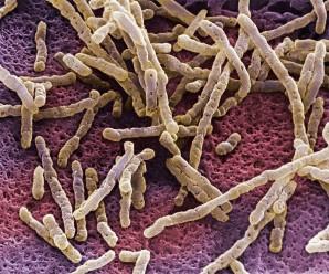 Патогенное заболевание кишечника. Кандидоз